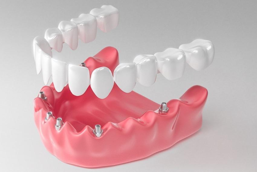 پل دندانی چیست ؟