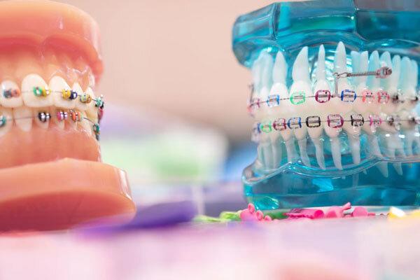 این مشکل دندان ها رو فقط بهترین متخصصان ارتودنسی می توانند حل کنند ؟
