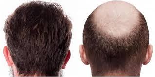 فرایند پس از کاشت مو