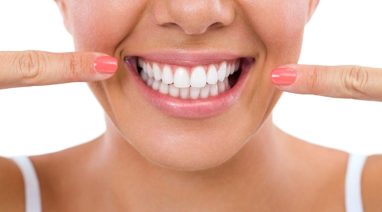 مراحل تهیه لمینت دندان چیست؟