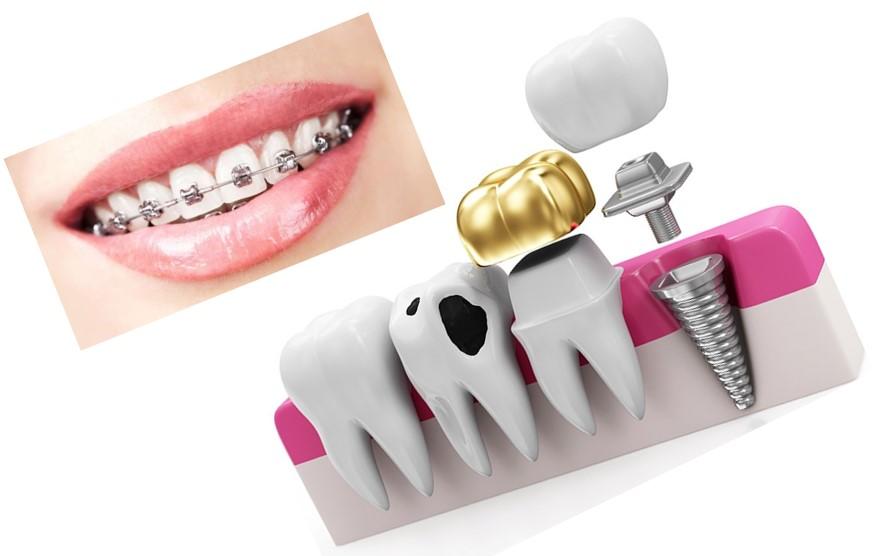 چرا قیمت ایمپلنت در کلینیک هاى مختلف دندان پزشکى متفاوت است؟