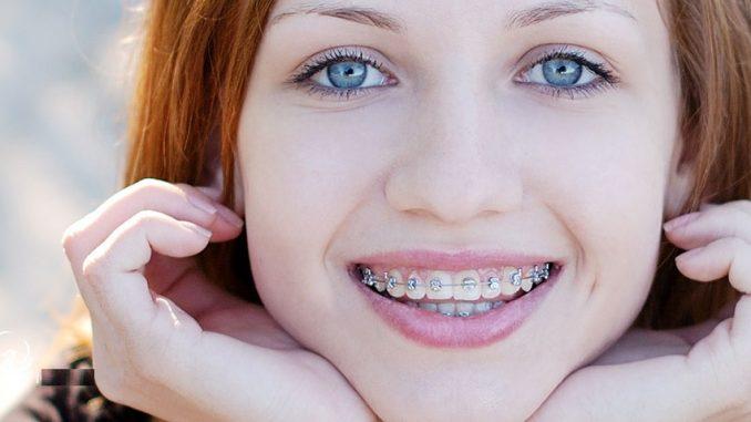 هدف از درمان ارتودنسی ثابت توسط دندانپزشک چیست؟